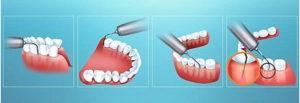 удаление-зубного камня ультразвуком
